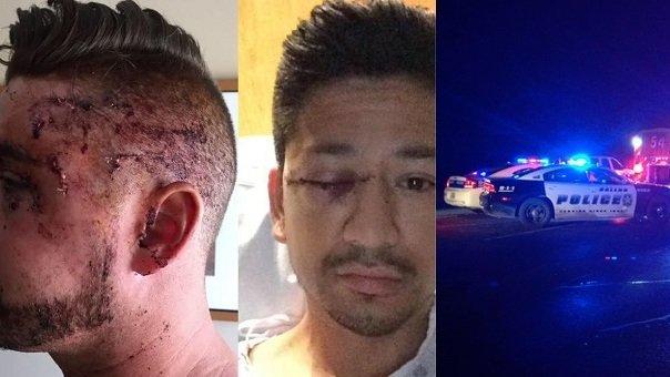 Dallas gay attacks