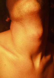 male neck