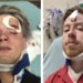 Gay Couple Recovering After Brutal Homophobic Attack in Downtown Austin, Texas: WATCH