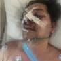 Miami Beach Chef Was Beaten In An 'Alleged' Homophobic Attack: WATCH