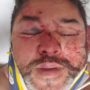 Phoenix Man Says 'Mob' of People Attacked Him in Anti-Gay Hate Crime