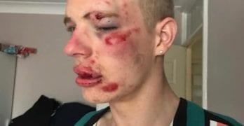 Ryan Williams homophobic attack