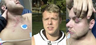 Gay Couple: Men Claiming to Be Police Assaulted Us —WATCH